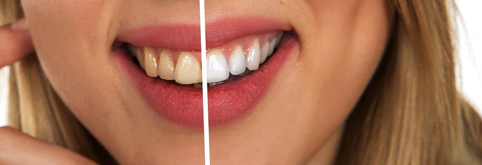 Bicarbonat de amoniu pentru dinti