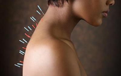 Acupunctura - metoda de tratare a afectiunilor
