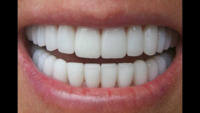 Cum sa ai dinti superbi fara sa mergi la dentist