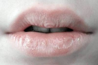 Remediu simplu pentru buze uscate