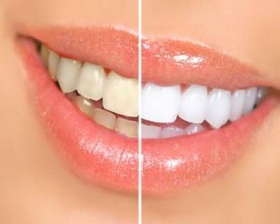 4 alimente care iti albesc dintii