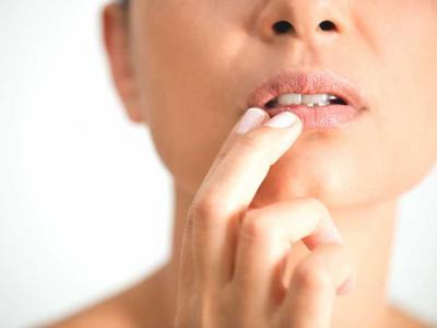 Tratament simplu si rapid pentru herpes