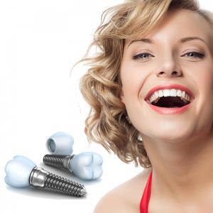 De ce un implant dentar este cea mai buna solutie pentru tine?