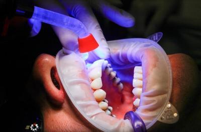Stomatologia viitorului este stomatologia minim-invaziva, fara durere si cu materiale biocompatibile - Marca Life Dental Spa