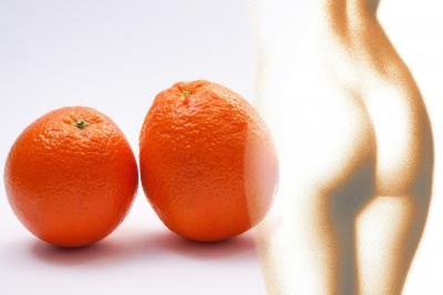 Remedii naturale impotriva celulitei