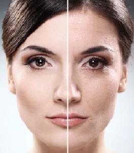Frumoasa la orice varsta - Rejuvenare celulara faciala cu IPL