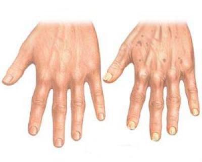 15 solutii naturiste pentru combaterea reumatismului