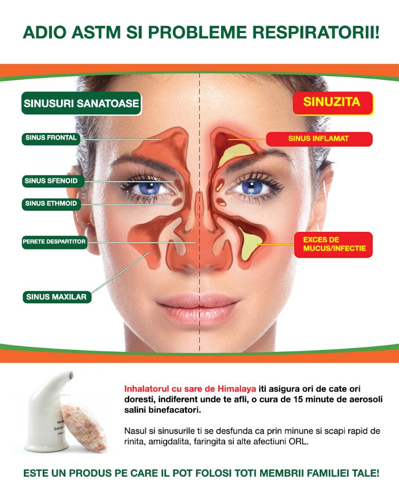 inhalator astm bronsita
