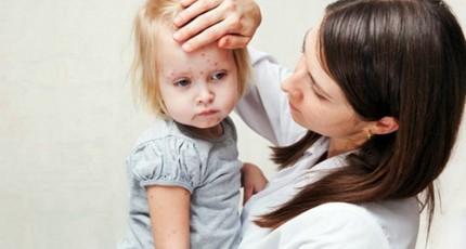 Bolile Copilariei Rujeola Pojar