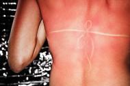 4 tratamente naturiste pentru pielea arsa de soare