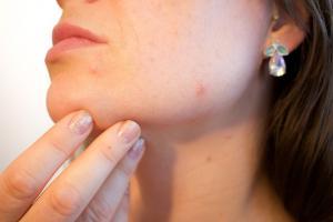 8 simptome ale dereglarilor hormonale