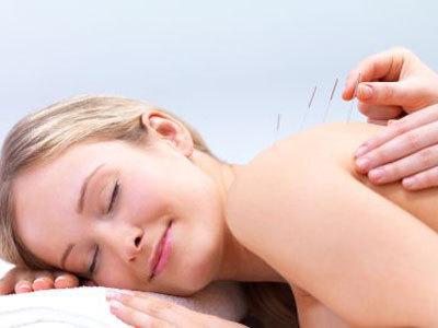 Acupunctura: o terapie alternativa pentru sanatate