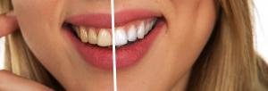 Albirea dintilor cu bicarbonat de sodiu: iata metoda cu care nu dai gres!