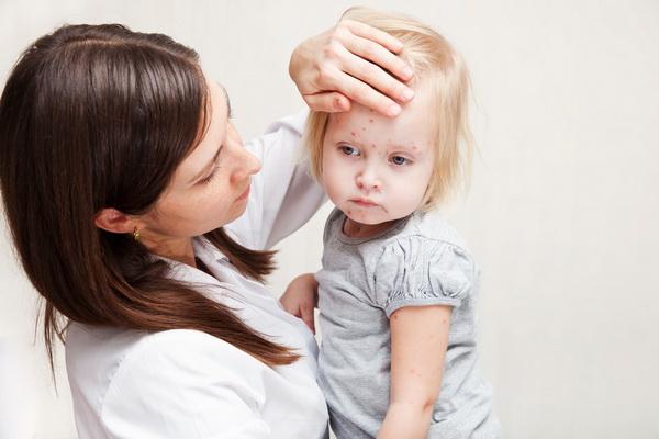 Rubeola - simptome si tratament