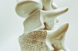 Alimentul care te scapa de osteoporoza