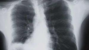 STUDIU. Riscul de cancer pulmonar creste, daca locuiesti langa o strada aglomerata