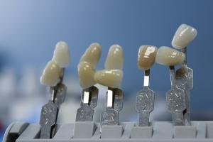 Cele mai auzite mituri despre igiena orala