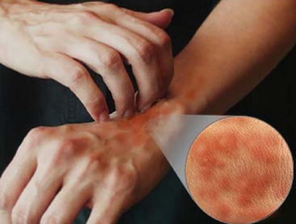 Afectiuni dermatologice. Urticaria